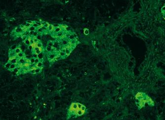 scaun cu antigene giardiacryptosporidiume histolytica